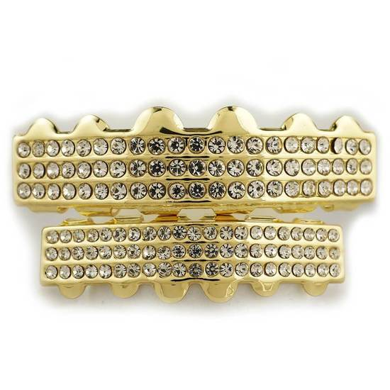 gold-grillz-img-1_550x825